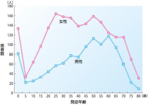 発症年齢の線グラフ