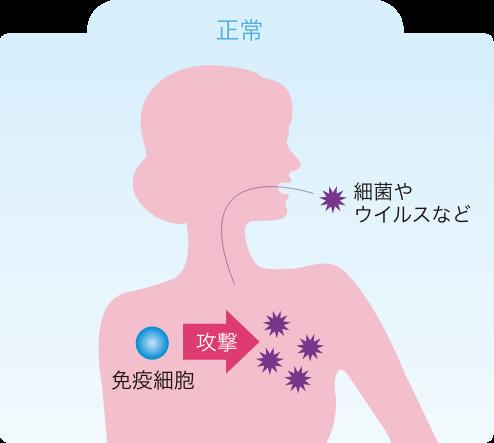 多発性筋炎・皮膚筋炎とは? 多発性筋炎・皮膚筋炎の患者さんとご家族へ