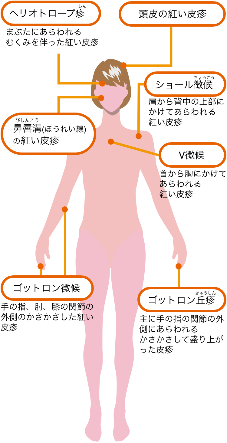 筋炎 皮膚 膠原 病