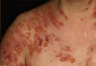水疱 性 類 天 疱瘡 水疱性類天疱瘡について メディカルノート